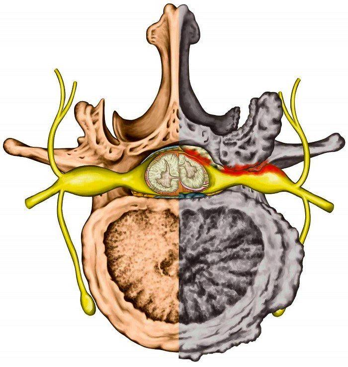 درمان تنگی کانال نخاع کمر و گردن با فیزیوتراپی و ورزش