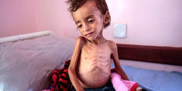 هشدار مقام یمنی نسبت به خطر مرگ جمعی میلیونها کودک این کشور