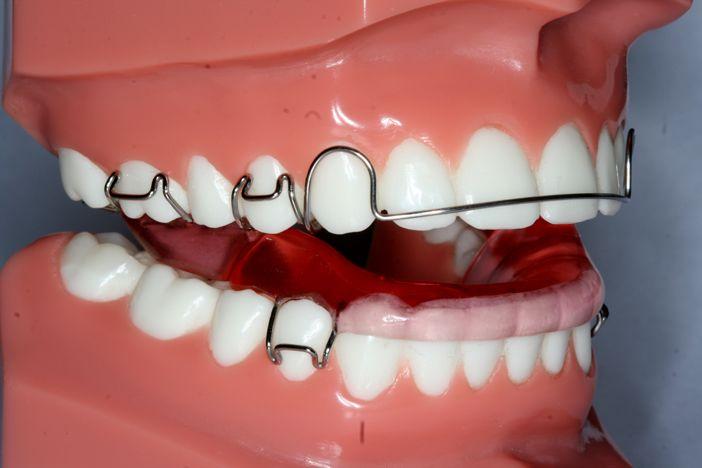 ارتودنسی فانکشنال:از بین بردن فشار روی دندانها و تغییرموقعیت فک