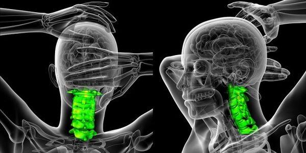 درمان آرتروز گردن: علت ساییدگی مهره های گردن
