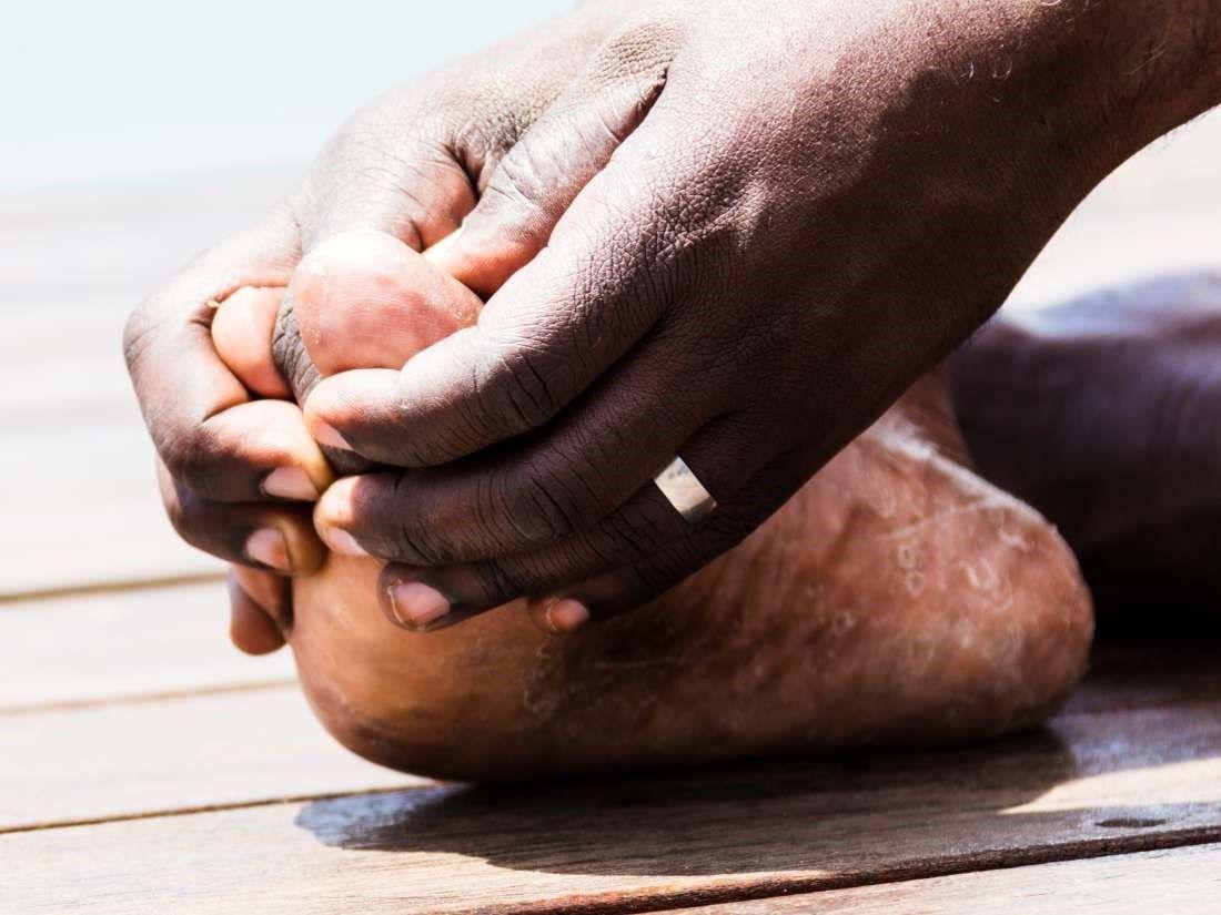 درد انگشتان پا: درد بین مفاصل انگشتان پا ناشی از آرتروز و نقرس