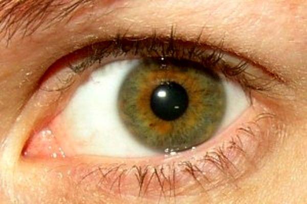 قرمزی چشم از علائم ابتلا به کرونا است