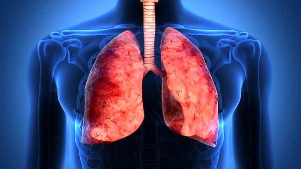 سرطان ریه در چه زمانی باعث تومور مغزی می شود؟
