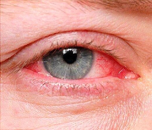 این بیماری های خطرناک از راه چشم لو میروند