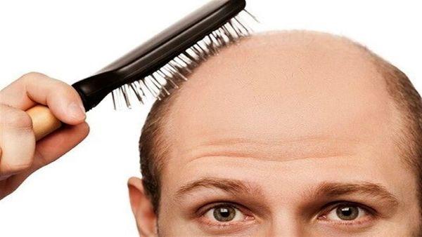 کمبود این ماده مهم در بدن، عامل ریزش مو است