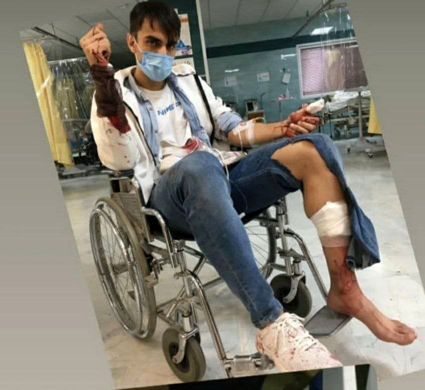 ضرب و جرح زامهران