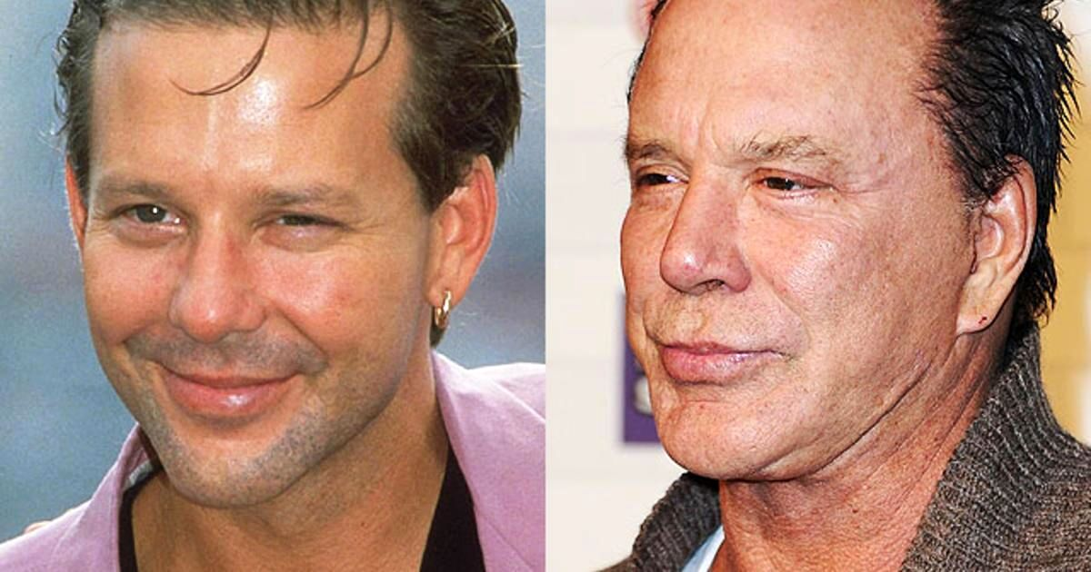 هنرپیشههایی که با جراحی پلاستیک چهره خود را خراب کردند + تصاویر