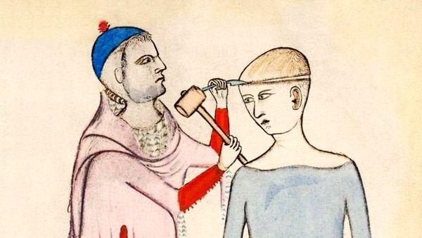 روش های ترسناک برای درمان سردرد