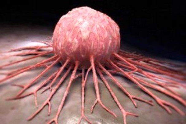 نرخ مرگ و میر در مردان مبتلا به سرطان سینه بیشتر است