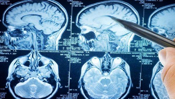 مرگبارترین تومورهای مغزی با این روش درمان می شود!