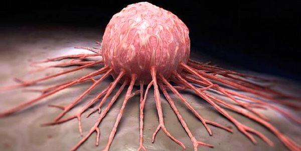 راهکارهایی ساده برای کاهش خطر ابتلا به سرطان+اینفوگرافیک