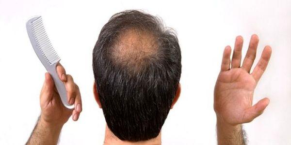 7 اشتباهی که افراد کم مو مرتکب می شوند
