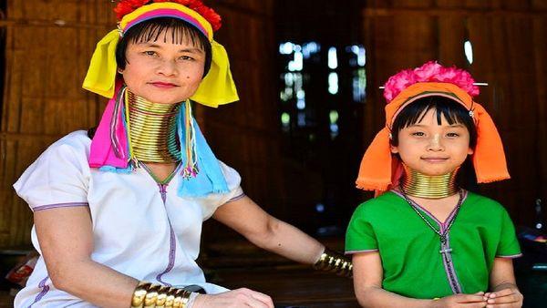 ۸ معیار عجیب و غریب زیبایی در آسیا!