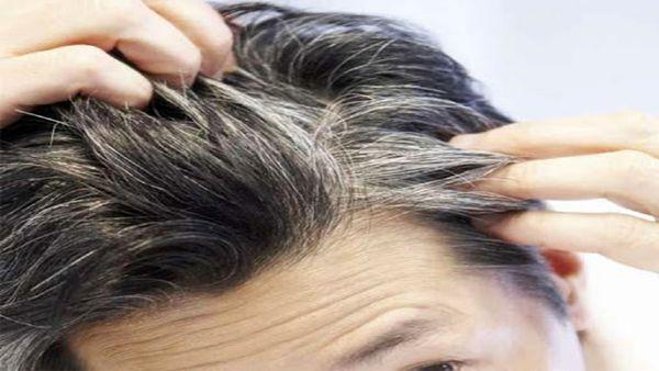 علت سفیدى مو در سنین جوانى چیست؟