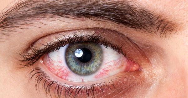 این توصیه را درباره چشم های خود جدی بگیرید