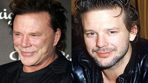 بلای وحشتناکی که عمل زیبایی بر سر چهره این هنرپیشهها آورد + عکس