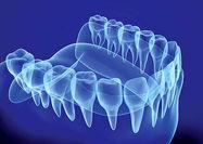 حل مشکل زندانیان تگزاس با دندان مصنوعی سهبعدی