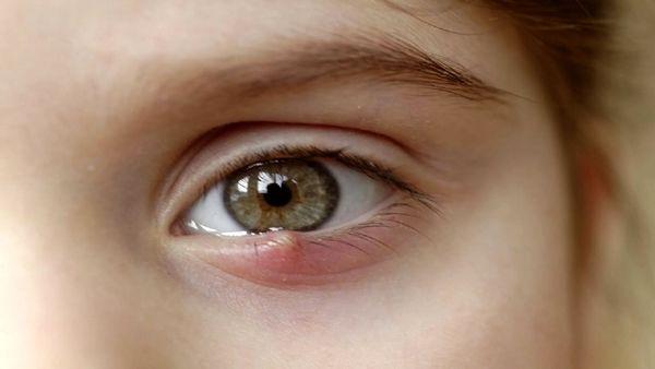 این بیماری چشمی باعث نابینایی میشود