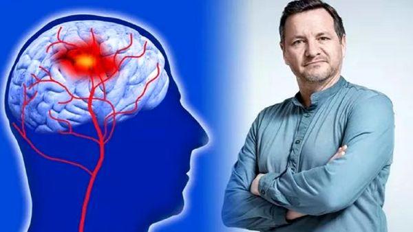 ۵ راهکار مهم برای جلوگیری از سکته مغزی