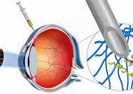 دارورسانی مستقیم از چشم توسط روباتهای کوچک