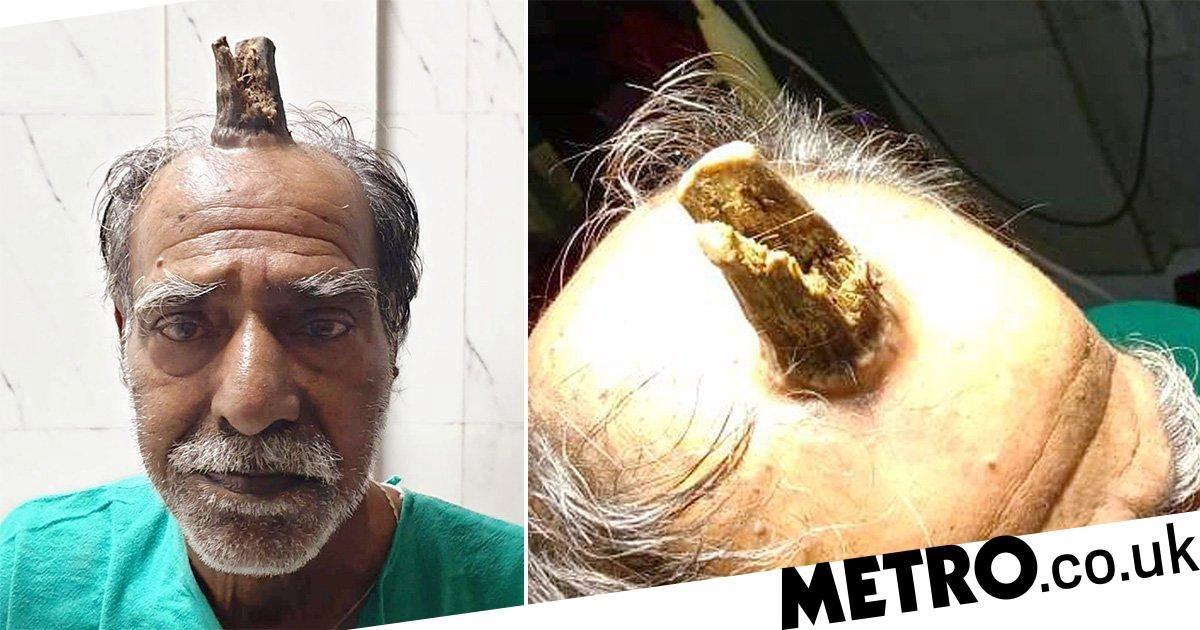 رشد شاخی عجیب بر روی سر مرد سالخورده!+ عکس
