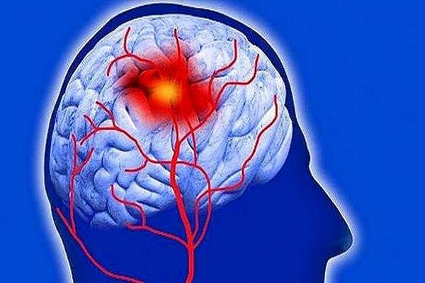 نکاتی مهم برای پیشگیری از سکته مغزی که باید بدانید
