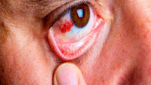 قرمزی چشم خود را اینگونه از بین ببرید
