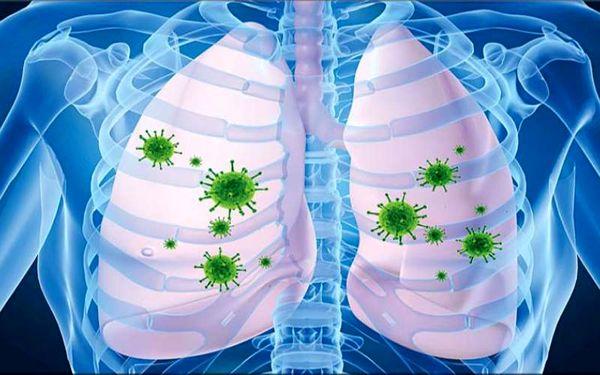 بلایی که ویروس کرونا ظرف چند ساعت بر سر ریهها میآورد