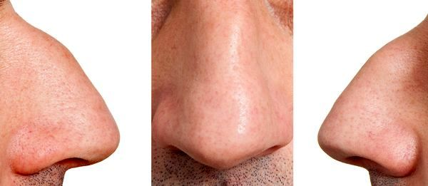 پوست ضخیم بینی بر روی نتیجه جراحی بینی چه تأثیری میگذارد؟