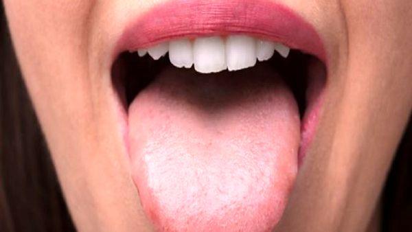 سرطان زبان را با این 3 نشانه تشخیص دهید