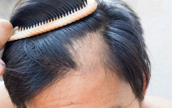 داروهایی که موجب ریزش مو میشوند