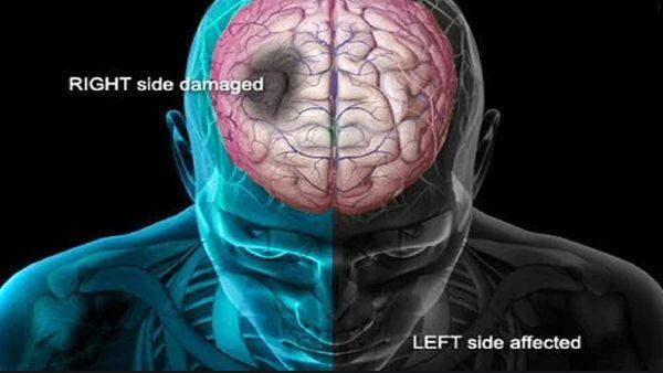 رایجترین نشانههای وقوع سکته مغزی