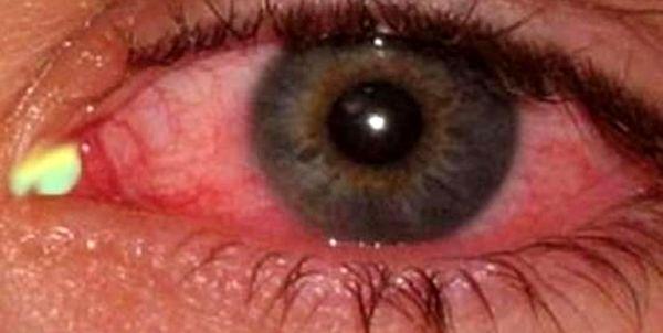 شایعترین علائمی که کرونا در چشمها ایجاد میکند