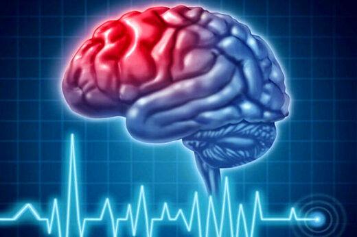 علائم مهم سکته مغزی کدام است؟