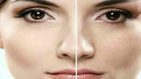 با این ۷ روش پوستتان را صاف و زیبا کنید