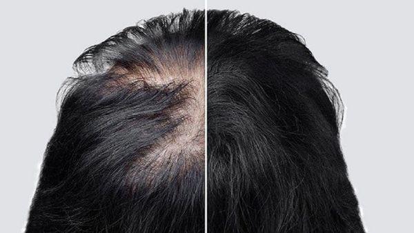 با وجود این عادت ها کم کم از موهایتان خداحافظی کنید!