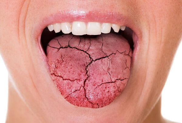 تاثیر میزان قند خون در ایجاد خشکی دهان چقدر است؟